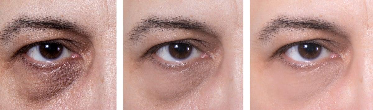 Funktionieren Mittel gegen Tränensäcke wirklich - Vergleichsbild