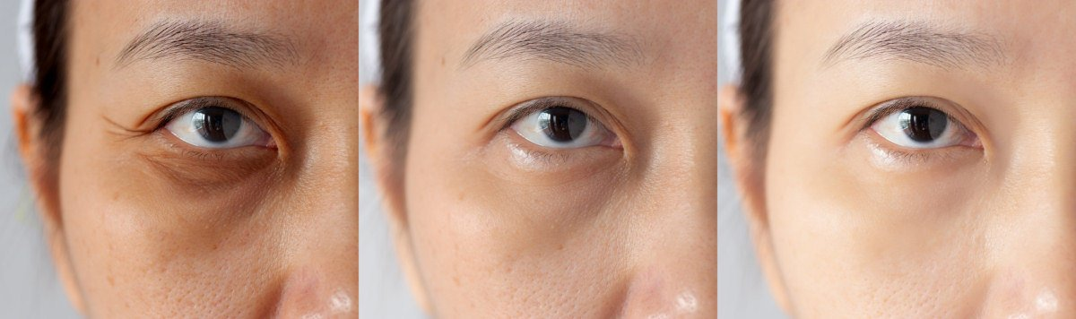 Comparison images Immediate aid for eye bags and dark circles