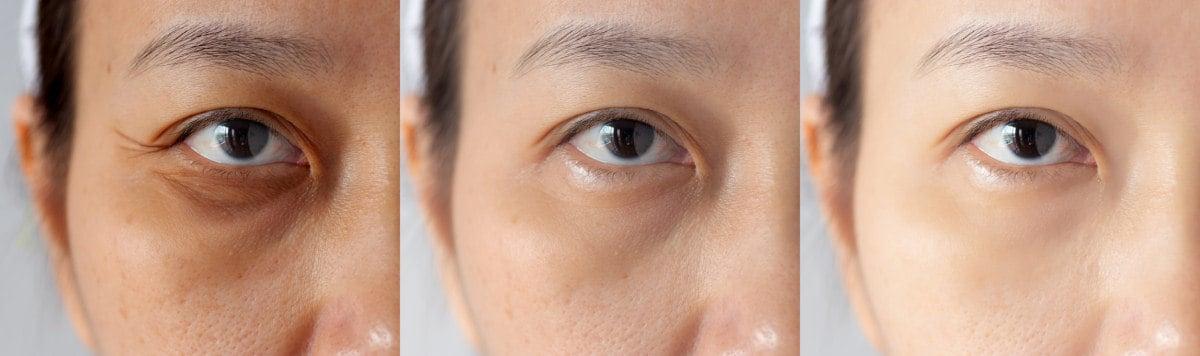 Vergleichsbilder Soforthilfen gegen Tränensäcke und Augenringe
