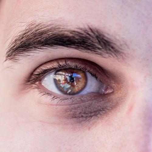 Was sind überhaupt Tränensäcke und Augenringe